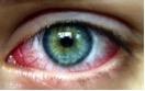 eye PR shot